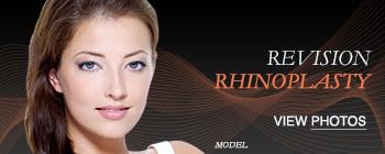 btn-rev_rhino